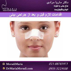 اقدامات لازم در جراحی بینی