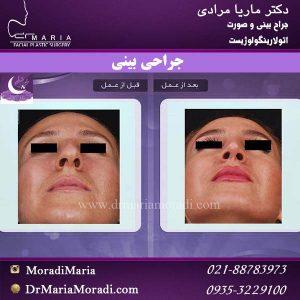 جراحی بینی 2 (2)
