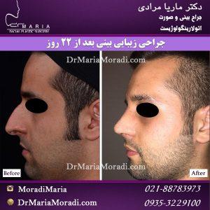 جراحی بینی (4)