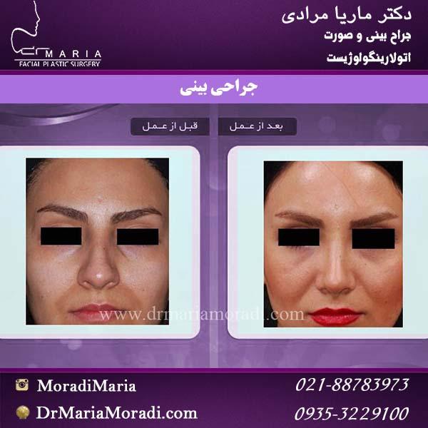 نمونه جراحی بینی 1