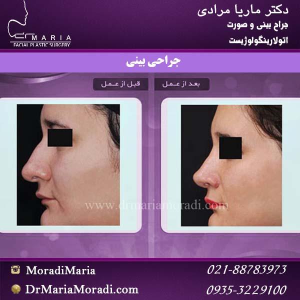 نمونه جراحی بینی 6