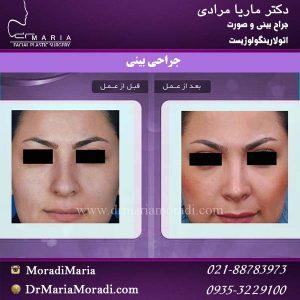 عمل زیبایی بینی33