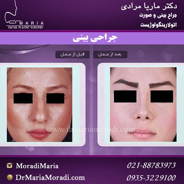 نمونه جراحی بینی 5