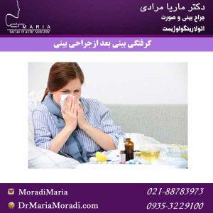 گرفتگی-بینی-بعد-ازجراحی-بینی