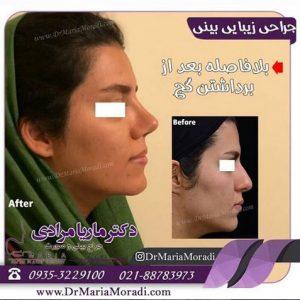 بهترین سن جراحی بینی