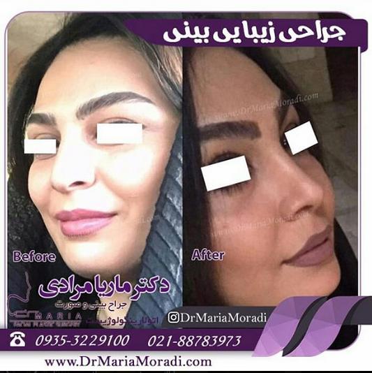 بهترین جراح بینی در تهران کیست ؟