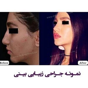 جراحی بینی دکتر ماریا مرادی