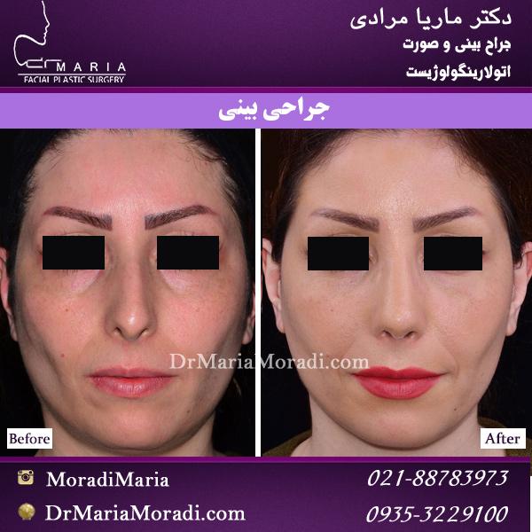 جراحی بینی استخوانی با تیغه بینی بلند