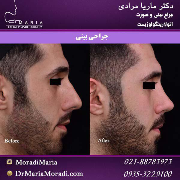 جراحی بینی مرد