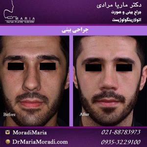 جراحی بینی گوشتی با نوک پهن