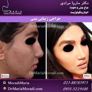 جراحی بینی زنانه