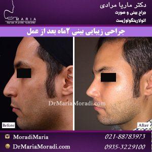جراحی بینی استخوانی مردانه بصورت طبیعی