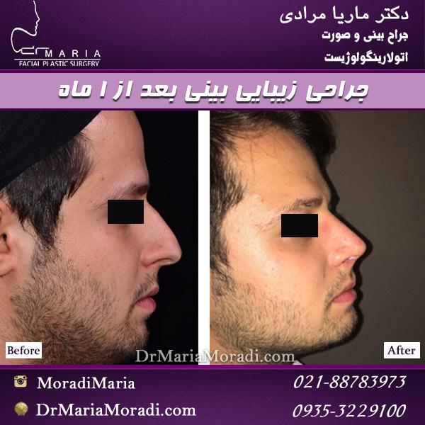 جراحی بینی مردانه بعد 12 ماه