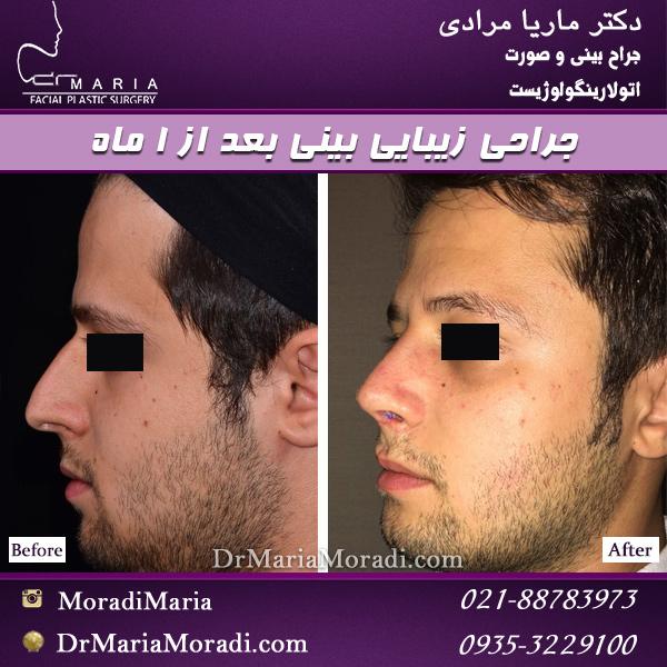 نمونه جراحی بینی بعد از 1 ماه