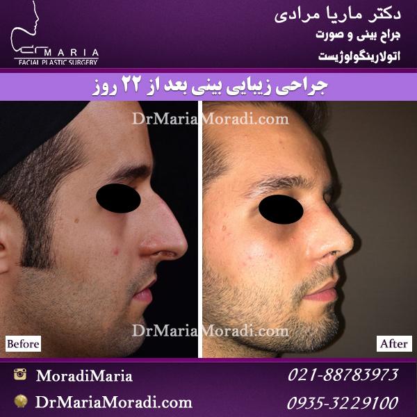 22 روز بعد از جراحی زیبایی بینی مردانه و بسیار استخوانی