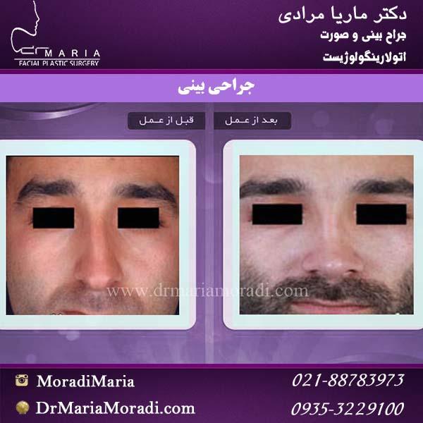 جراحی بینی05