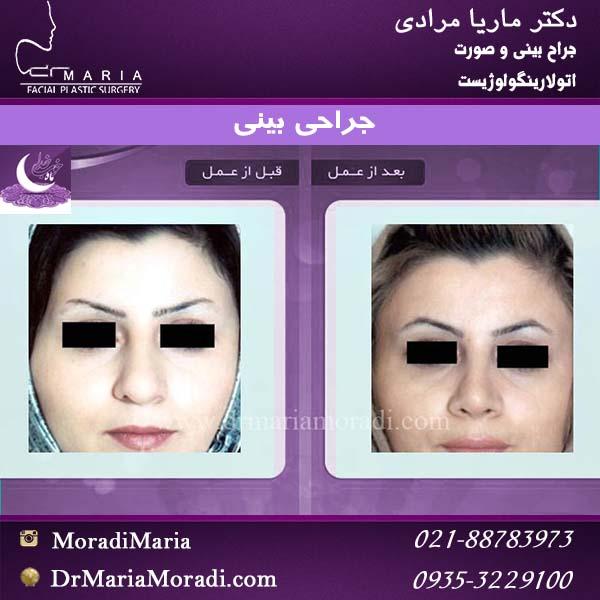 قبل و بعد نمونه کار بینی