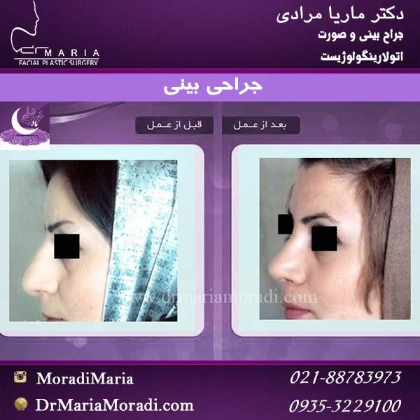 قبل و بعد جراحی بینی