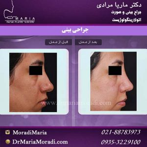 نمونه کار جراحی بینی گوشتی با نوک بزرگ