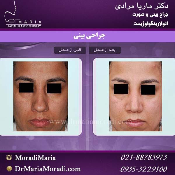 نمونه کار جراحی بینی