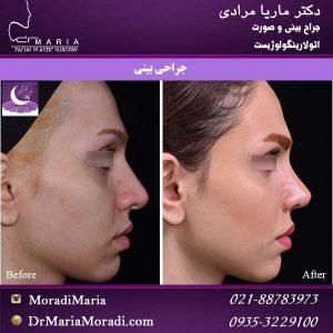 عمل زیبایی بینی - دکتر ماریا مرادی