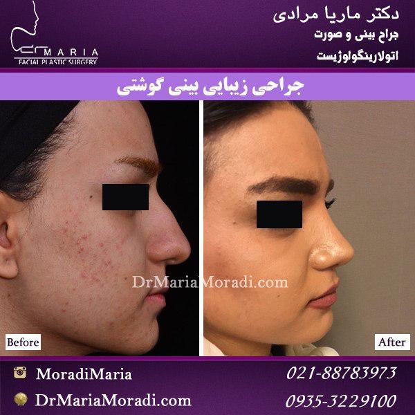 قبل و بعد جراحی زیبایی بینی گوشتی