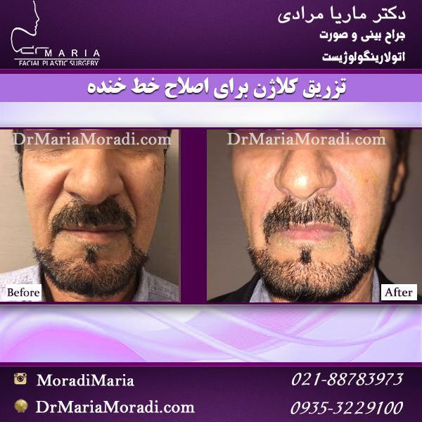 تزریق کلاژن برای اصلاح خط خنده توسط دکتر ماریا مرادی