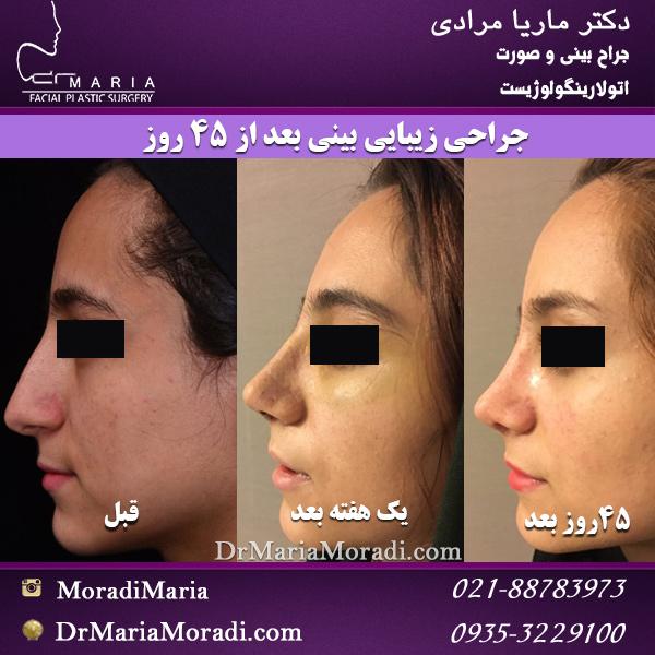 جراحی زیبایی بینی بعد از 45 روز