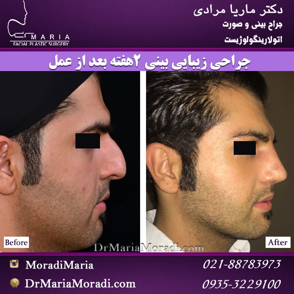 جراحی زیبایی بینی مردانه 2 ماه بعد از عمل