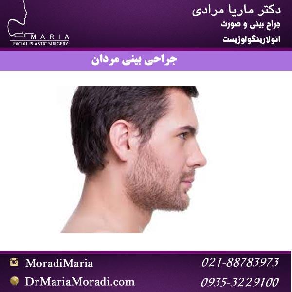 جراحی بینی مردان با دکتر ماریا مرادی