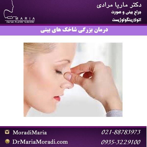 درمان بزرگی شاخک های بینی با دکتر ماریا مرادی