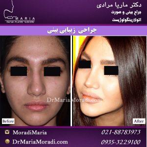 جراحی بینی پهن توسط دکتر ماریا مرادی