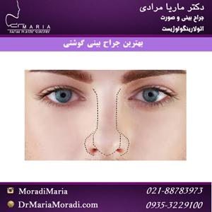 بهترین-جراح-بینی-گوشتی دکتر ماریا مرادی