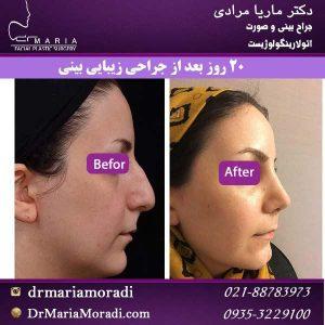 20 روز بعد از جراحی زیبایی بینی