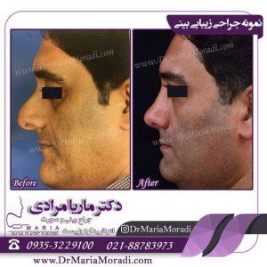 عکس جراحی بینی گوشتی