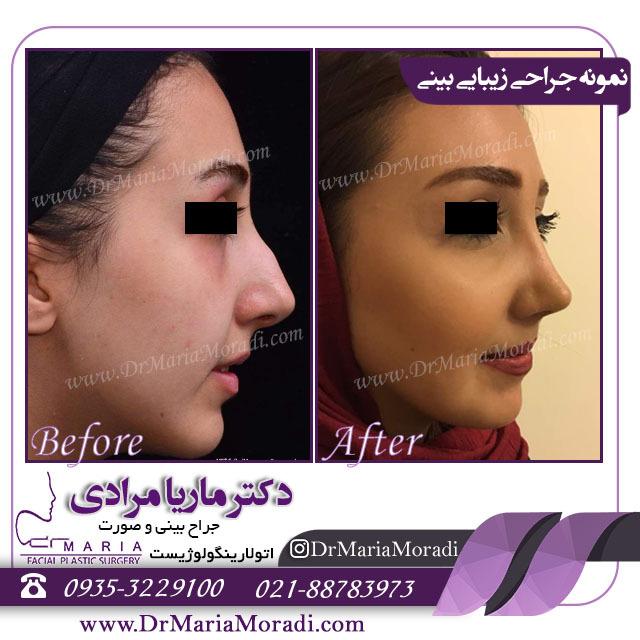 نمونه جراحی بینی عروسکی
