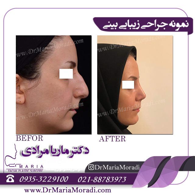 جراحی بینی استخوانی دکتر ماریا مرادی