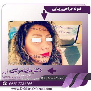 جراح بینی دکتر ماریا مرادی