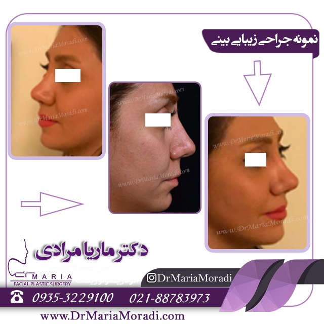 نمونه جراحی زیبایی بینی