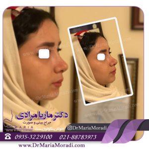دکتر ماریا مرادی و نمونه کار جراحی بینی