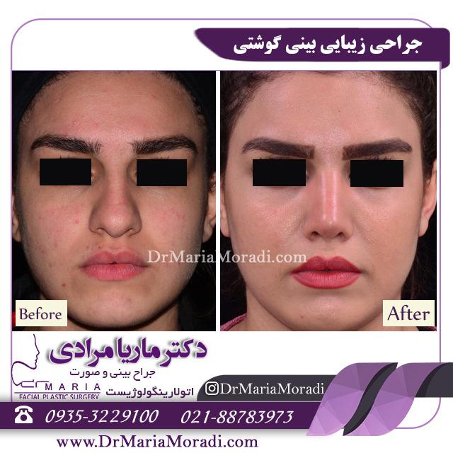 نمونه جراحی زیبایی بینی گوشتی