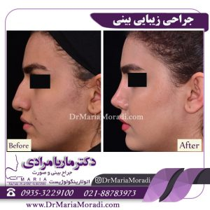 نمونه قبل و بعد جراحی زیبایی بینی