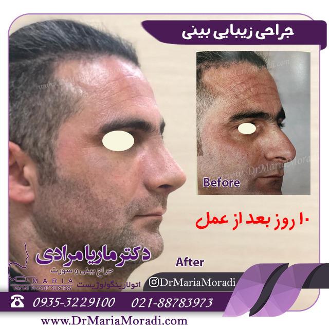 10 روز بعد از جراحی زیبایی بینی