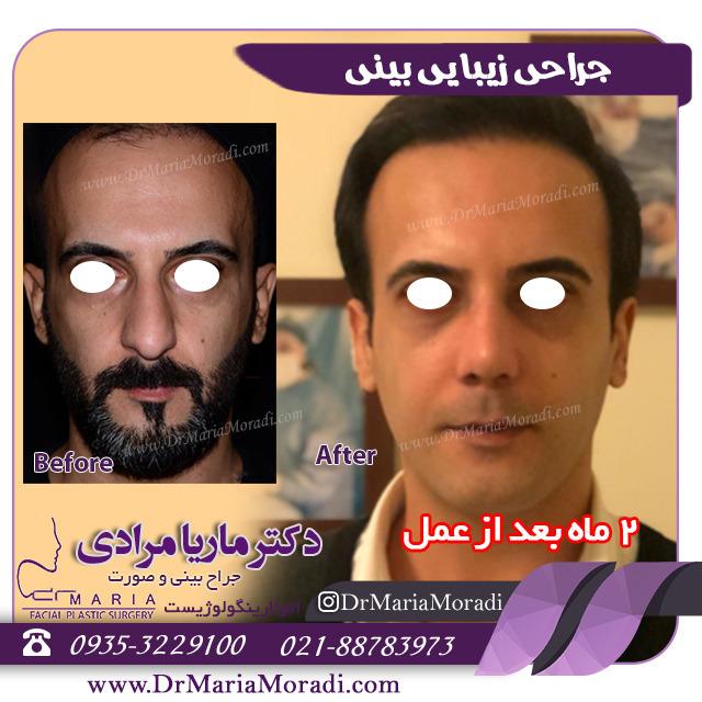 2ماه بعد از عمل جراحی زیبایی بینی