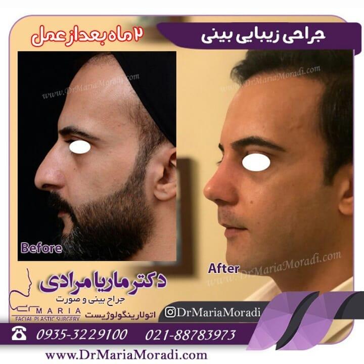 عکس جراحی زیبایی بینی 2 ماه پس از عمل