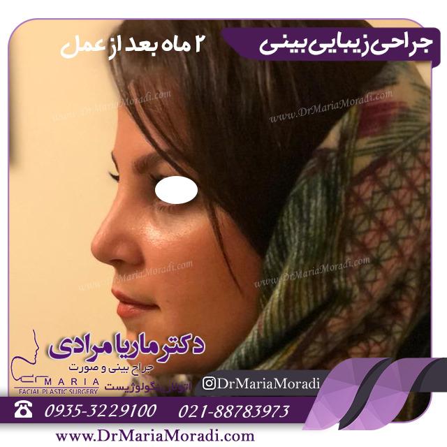بهترین جراح رینوپلاستی در تهران