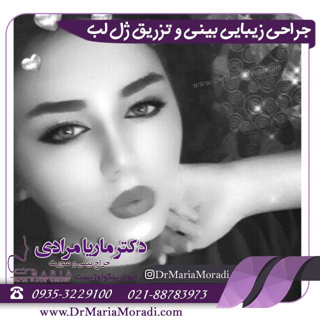 جراحی زیبایی بینی و تزریق ژل لب توسط دکتر ماریا مرادی