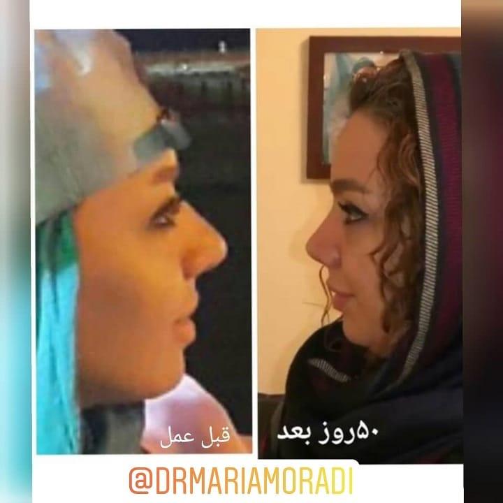 قبل و بعد از بینی گوشتی