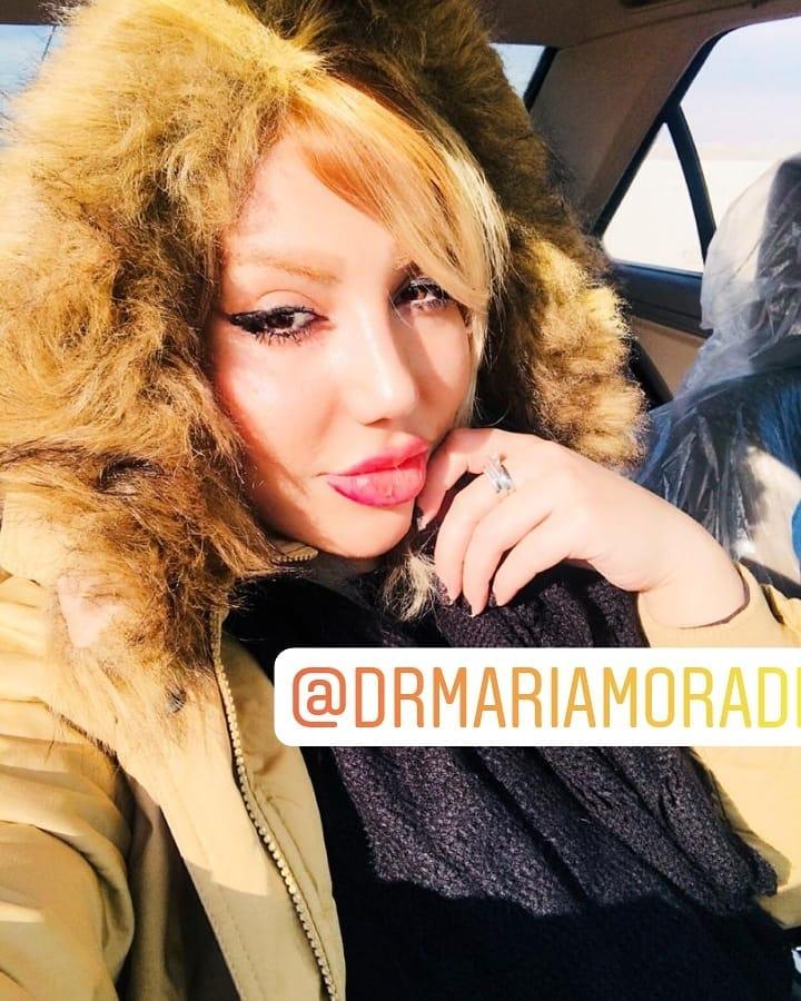 جراحی بینی و تزریق ژل لب توسط دکتر ماریا مرادی