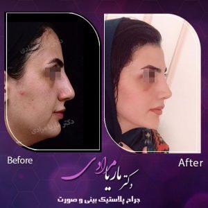 نمونه جراحی بینی توسط جراح پلاستیک بینی و صورت